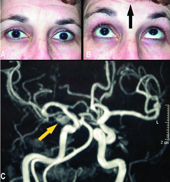 cefalee de miopie