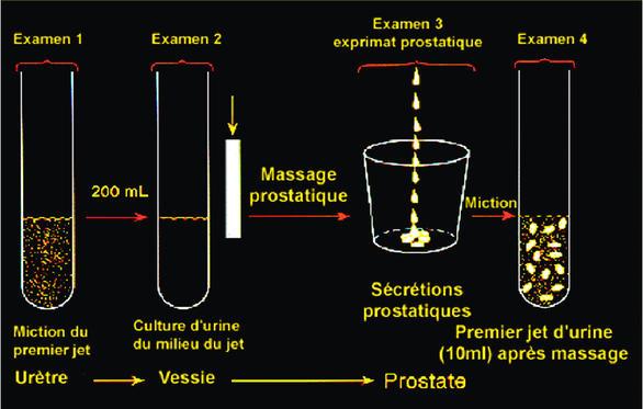 Krónikus prosztatitis 1 és 2 fok
