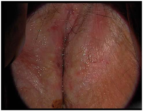 Papillomavirus vulve traitement
