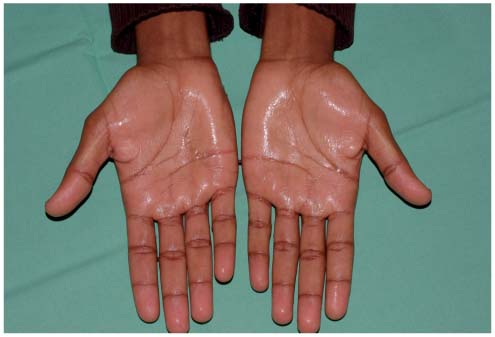 hyperhidrose pied traitement