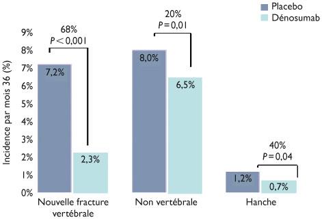 traitement ostéoporose par perfusion