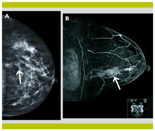 apport de l irm mammaire et du pet ct dans le bilan initial du cancer du sein revue m dicale. Black Bedroom Furniture Sets. Home Design Ideas