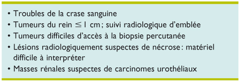 Biopsies des masses rénales : utilité et indications - Revue ...