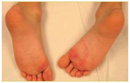 infection sous le pied