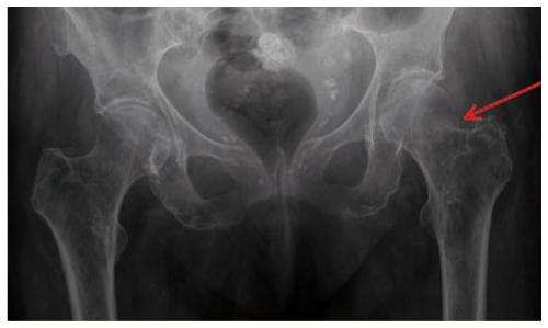 Pi U00e8ges En Orthop U00e9die Ambulatoire   Le Membre Inf U00e9rieur  2
