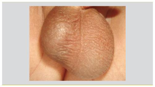 oedeme testicule