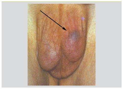 Torsion testiculaire : une urgence piège - Revue Médicale Suisse