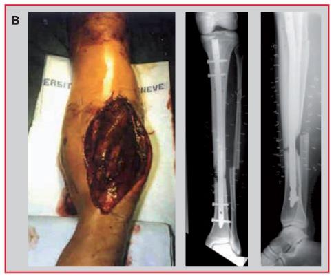Fractures ouvertes de la diaphyse tibiale chez l'adulte ...