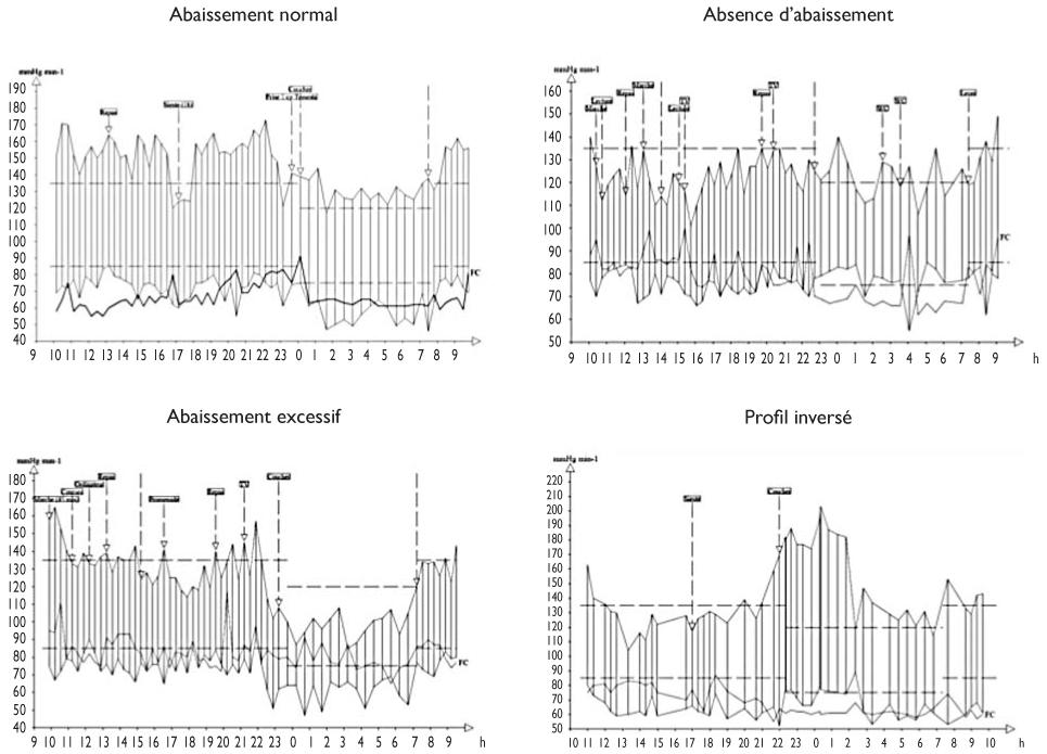 Implications cliniques du cycle circadien de la pression..