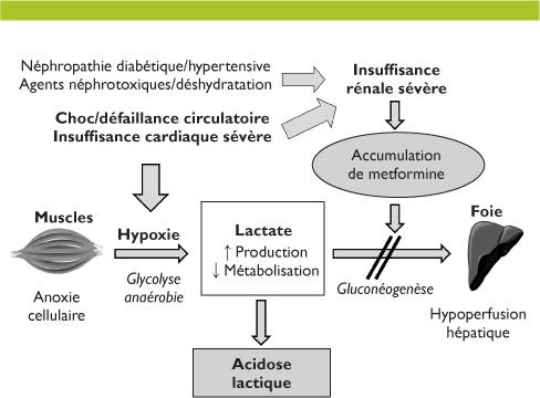 Glucophage cardiaque et insuffisance