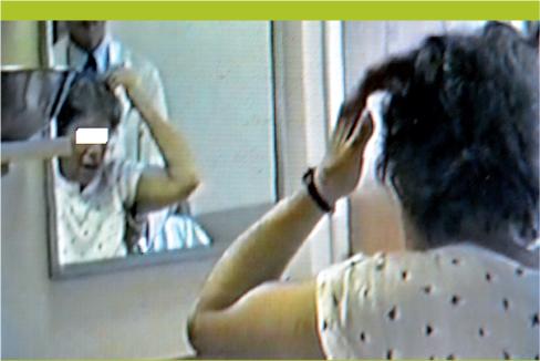 Conduites sp culaires dans les d mences les multiples for Syndrome miroir