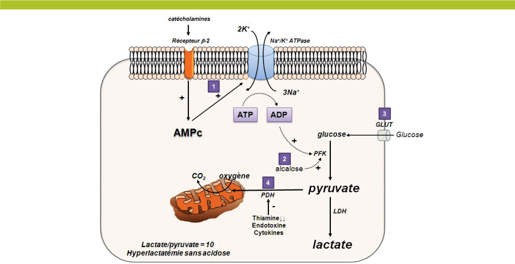 hyperlactat u00e9mie et acidose lactique chez le patient