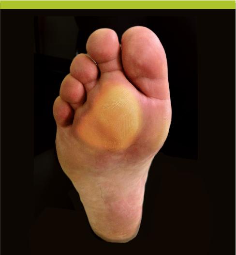 douleur plantaire avant pied