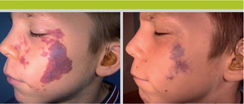 avant et aprs sept sances de traitement par laser combin colorant puls et nd yag coll jean luc lvy - Laser Colorant Puls