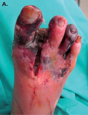 amputation pied arteritique