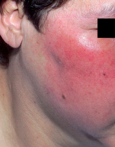 Erysipèle et dermohypodermite récidivants : prise en