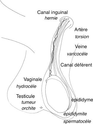 Douleurs et tuméfactions scrotales : prise en charge initiale ...