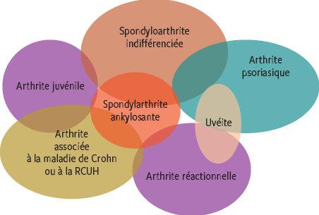 Arthrites réactionnelles : réactions inflammatoires ou vraie ...