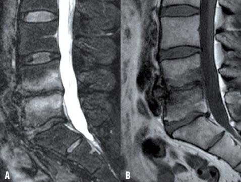 Quel est le rôle de la chirurgie pour les lombalgies avec