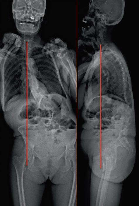 Scoliose de l'adulte : prise en charge chirurgicale - Revue