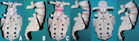 Scoliose de l'adulte : prise en charge chirurgicale - Revue Médicale